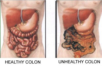 Natural Remedy For Stomach Acid Problems