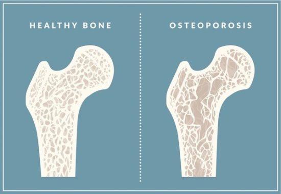 bones & probiotics